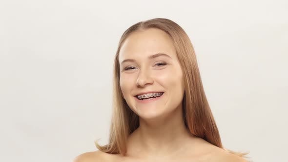 Thumbnail for Young Girl with Brackets on Teeth Watch and Blinking. White