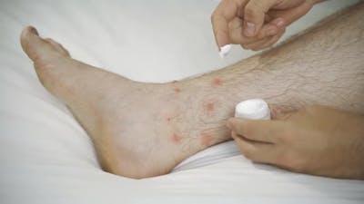 Dyshidrotic Eczema on the Foot Dermatitis