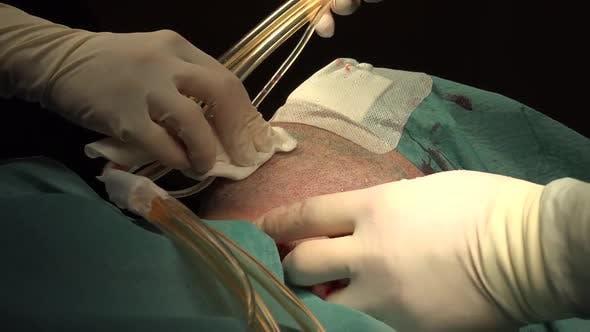 Facial Liposuction 3