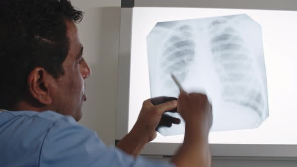 Thumbnail for Doctor Explaining X-Ray of Chest