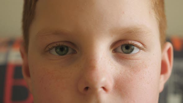 Thumbnail for Close Up Blue Eyes of Small Red-haired Boy Blinking and Looking Into Camera with a Tired Sight