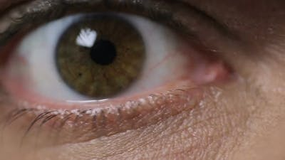 Male Eyes Looking Into Camera, Close-Up. Vision Problems, Ophthalmology