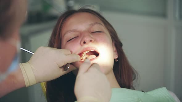 Cleaning of Teeth in Dental Cabinet