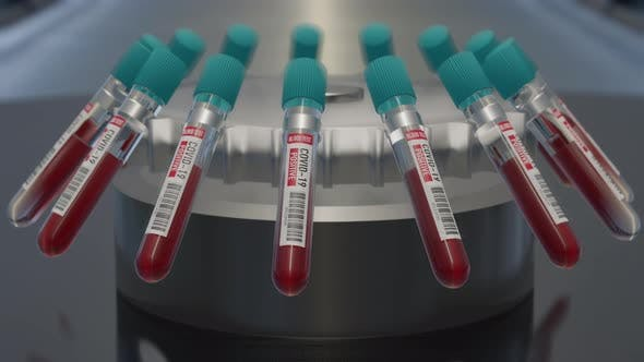 Coronavirus blood test positive Analyzing blood sample in test tubes for coronavirus test.