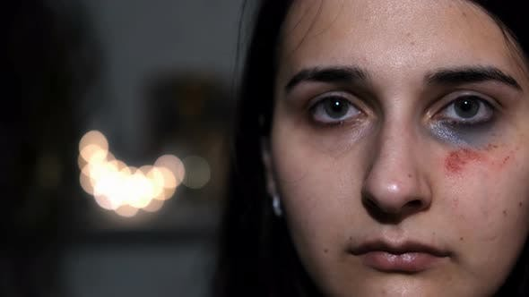 Thumbnail for Slow motion portrait of a young female victim of domestic violence. Abrasions on the face