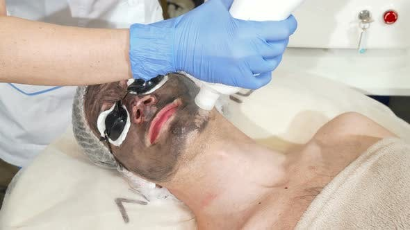 Thumbnail for Cosmetologist Doing Facial Carbon Peeling for Male Client