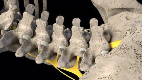 Spinal Nerve Inflammation