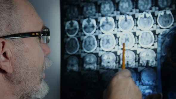 Thumbnail for Senior doctor reviewing brain MRI