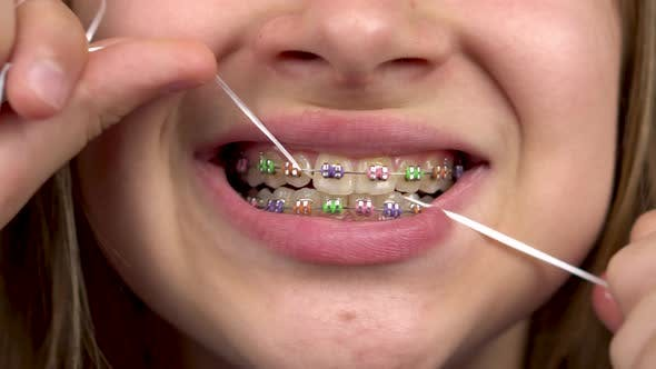 Thumbnail for Girl with Braces Brushing Your Teeth with Dental Floss Closeup. A Girl with Colored Braces on Her