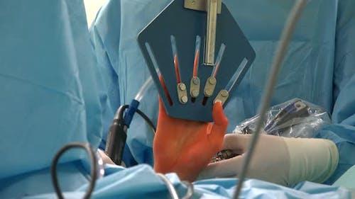 Handgelenk-Arthroskopie 6