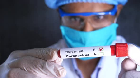 Thumbnail for Laboratory Technician in Face Mask and Protective Glass Holding Blood Test Tube