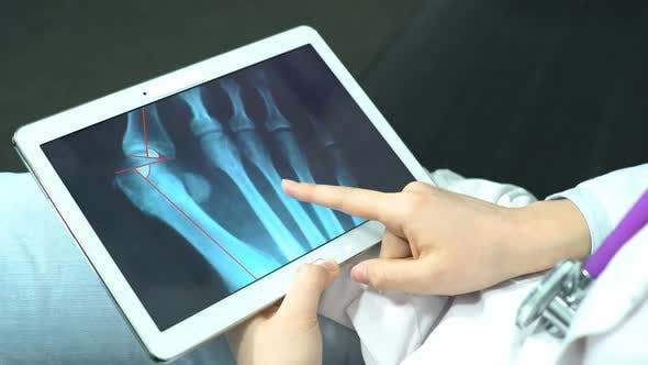 Thumbnail for Doctor Explores the X-ray Snapshot on the Tablet. Patient Advice Before Operation