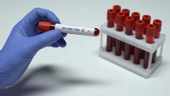 Thumbnail for Negative Uric Acid Test, Doctor Shows Blood Sample, Lab Research, Health Checkup