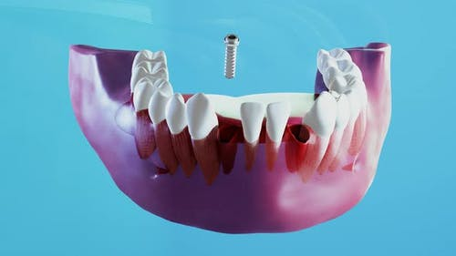 Ceramic Dental Implantation Process