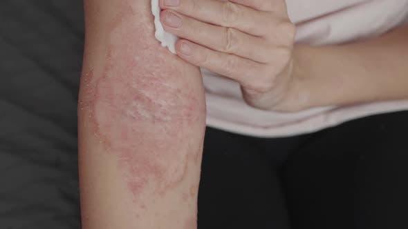 Frau mit Dermatitis mit Heillotion