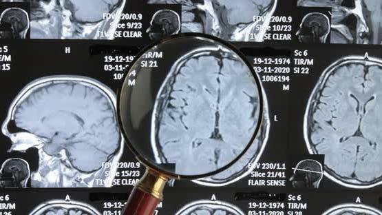 Mri Brain Scan Background, Magnetic Resonance Tomography. The Doctor Examines the Patient's Images
