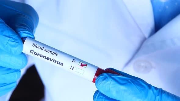 Laboratory Technician Hand Holding Blood Test Tube
