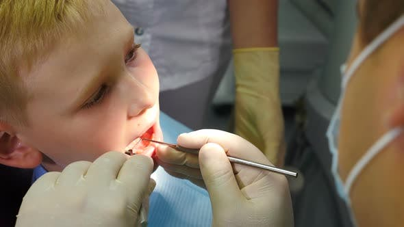 Thumbnail for Dental Health Concept. Close-up Shot of Male Dentist Treating Little Boy in Dental Clinic. Pediatric