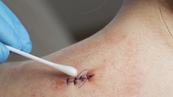 A Doctor Treats a Wound on a Woman's Shoulder