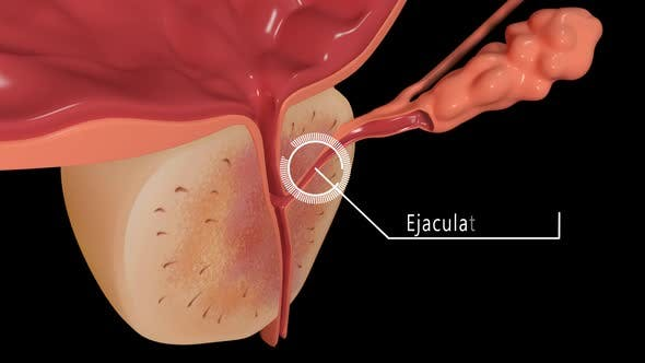 Thumbnail for Section Bladder And Prostate Overview