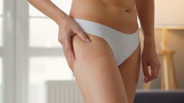 Thumbnail for Frau komprimiert die Haut der Beine und des Bauches, prüft auf Cellulite, Dehnungsstreifen und Überschuss