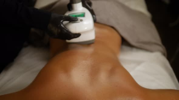 Thumbnail for Cosmetologist Makes a Woman Lpg Massage on the Back. Spa Aesthetics Medical Treatment Back Close-up