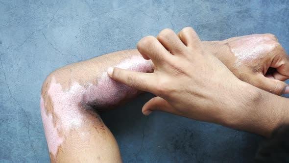 Burns on Man Hand on Black Background