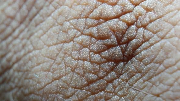 Thumbnail for Human Skin Analysis