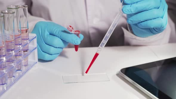 Thumbnail for The Doctor Analyzes Blood Samples and Writes the Results To a Spreadsheet on the Tablet.