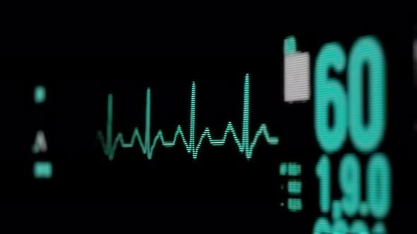 Heart Rate Monitor in Hospital Theater. Medical Vital Signs Monitor Instrument in a Hospital