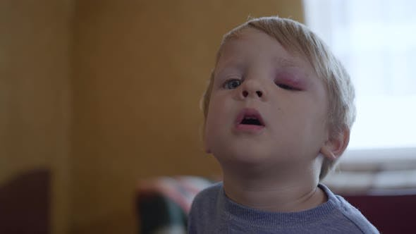 Small Male Child with an Injury or a Bruise on His Face Cannot Open His Eyes Due To Swelling and