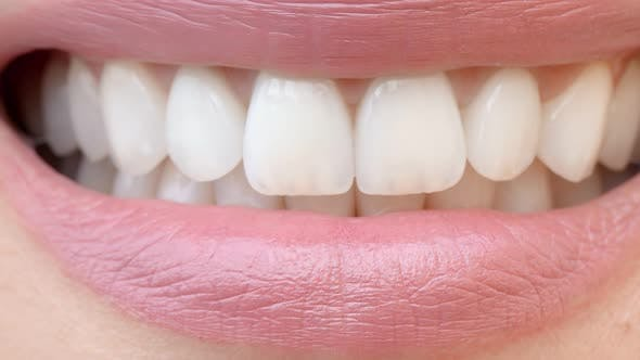 Thumbnail for Smile of a Charming Girl with Perfect White Teeth Close Up. Perfect White Teeth and a Smile.