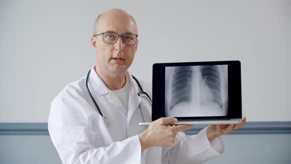 Thumbnail for Praktiker Arzt zeigt Lungenfluorographie Bild auf Laptop-Bildschirm während Online-Konsultation