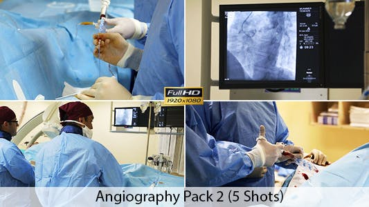 Thumbnail for Angiography