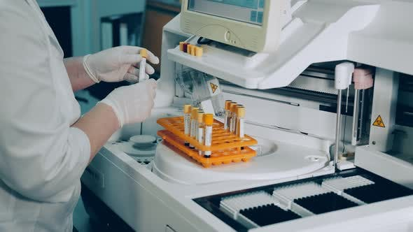 Microbiologist Conducts Research in the Laboratory. The Researcher Performs a Biochemical Analysis