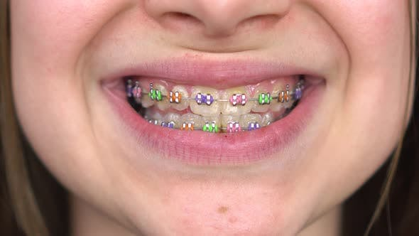 Thumbnail for Teen Girl with Braces Smiling Close-up. Girl with Colored Braces on Her Teeth.