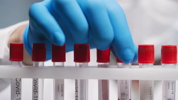 Thumbnail for Biomedical Scientist Studying Blood Samples in Test Tubes