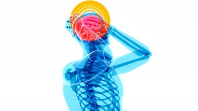 4K anatomy concept of a headache
