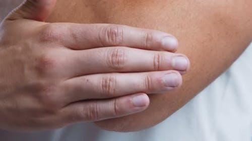 Mann Anwendung Salbe auf seinem Ellenbogen, um trockene Haut zu behandeln, Close Up