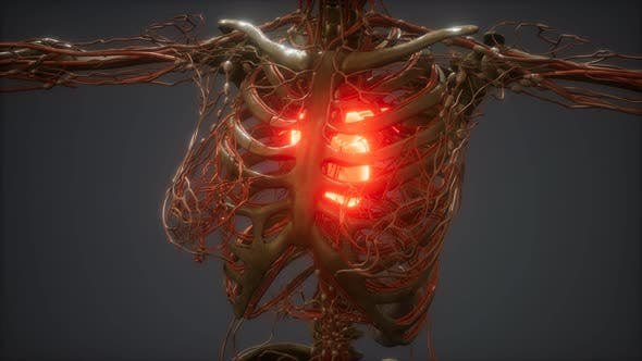 Thumbnail for CG Animation Of A Sick Human Heart