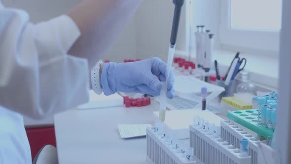 Thumbnail for Scientist with a Pipette Analyzes a Colored Liquid To Extract the DNA and Molecules in the Test