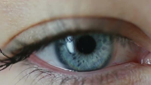 Thumbnail for Tired Eye