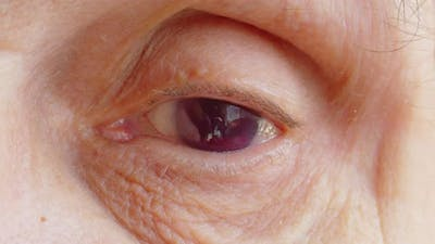 Eye with Complete Loss of Vision Closeup