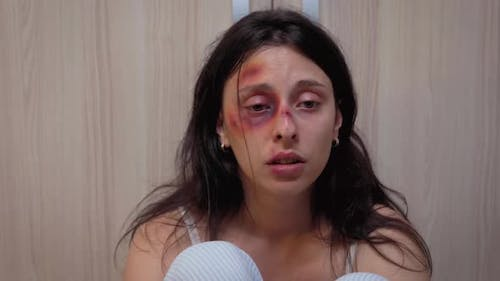 Woman with Bruise Eye Suffering