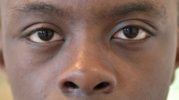 Thumbnail for Blinking Eyes of African Man
