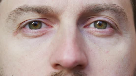 Thumbnail for Dark green eyes
