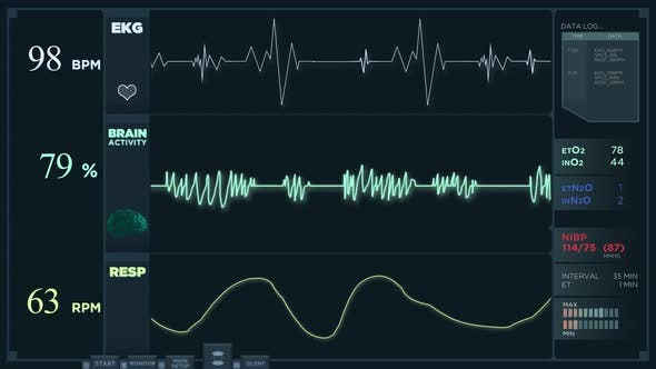 Fast Electrocardiogram Reading Display.