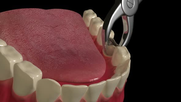 Thumbnail for Tooth Extraction