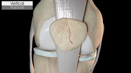 Patella Fracture   Vertical