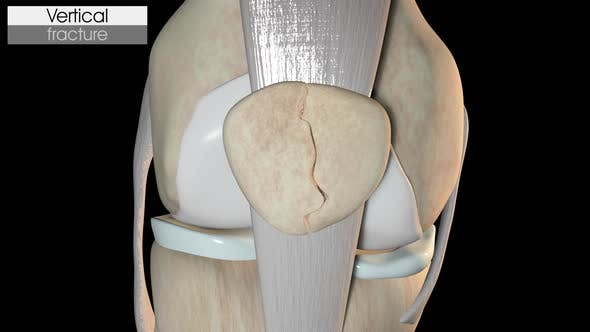 Thumbnail for Patella Fracture   Vertical